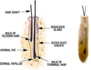 Anatomia trixas