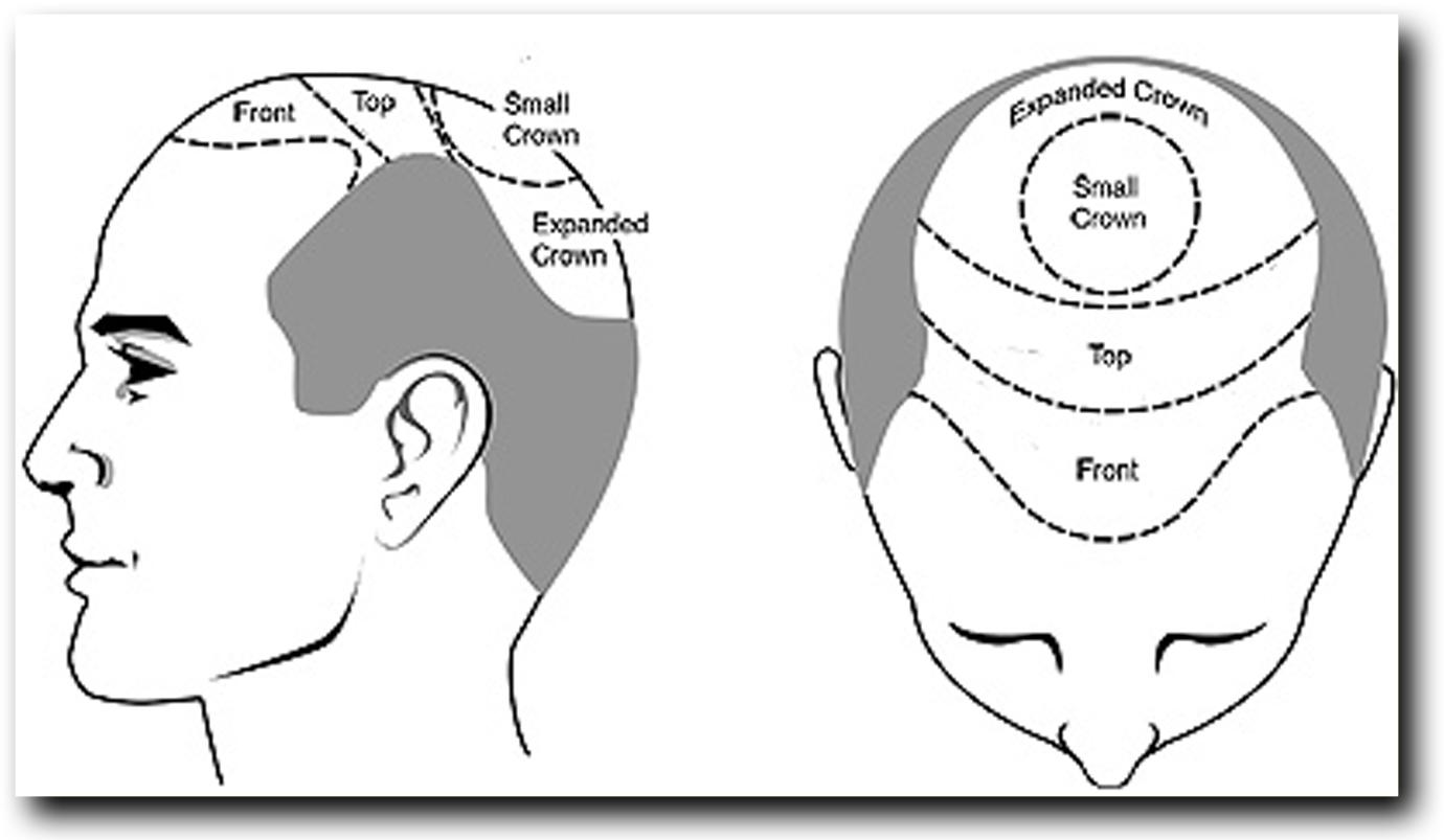 herstel behandelingen slechte haartransplantatie