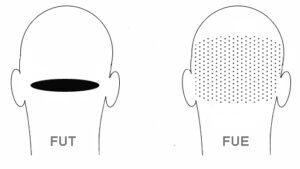 μεταμόσχευση Μαλλιών FUE FUT