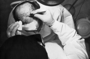 hair transplant history