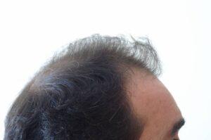 πριν μεταμόσχευση μαλλιών