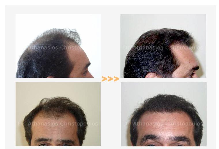 μεταμοσχεθση μαλλιων